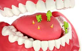 Food Particles inside teeth