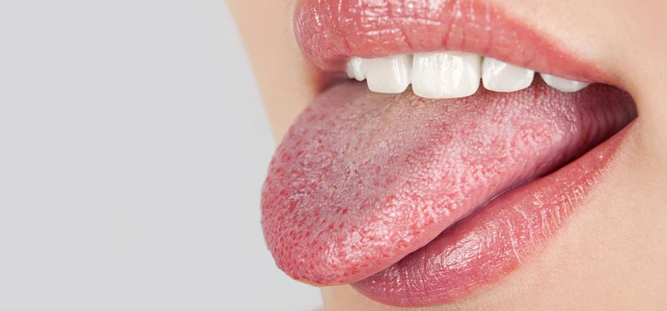 Description: C:\Users\Admin\Desktop\25-Effective-Home-Remedies-To-Treat-Dry-Mouth1.jpg