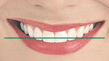 Smile Designing - Horizontal Line