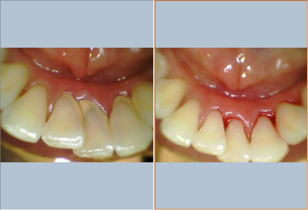 Trisa Dental Solutions Teeth Polishing In Mulund Teeth