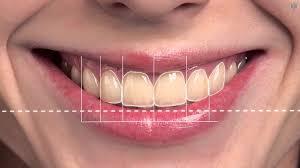 Trisa Dental Solutions Digital Smile Designing