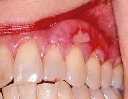 Trisa Dental Solutions Lichen Planus And Oral Lesions