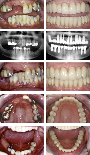 Dental Implants Before After