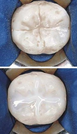 Sealants Before After