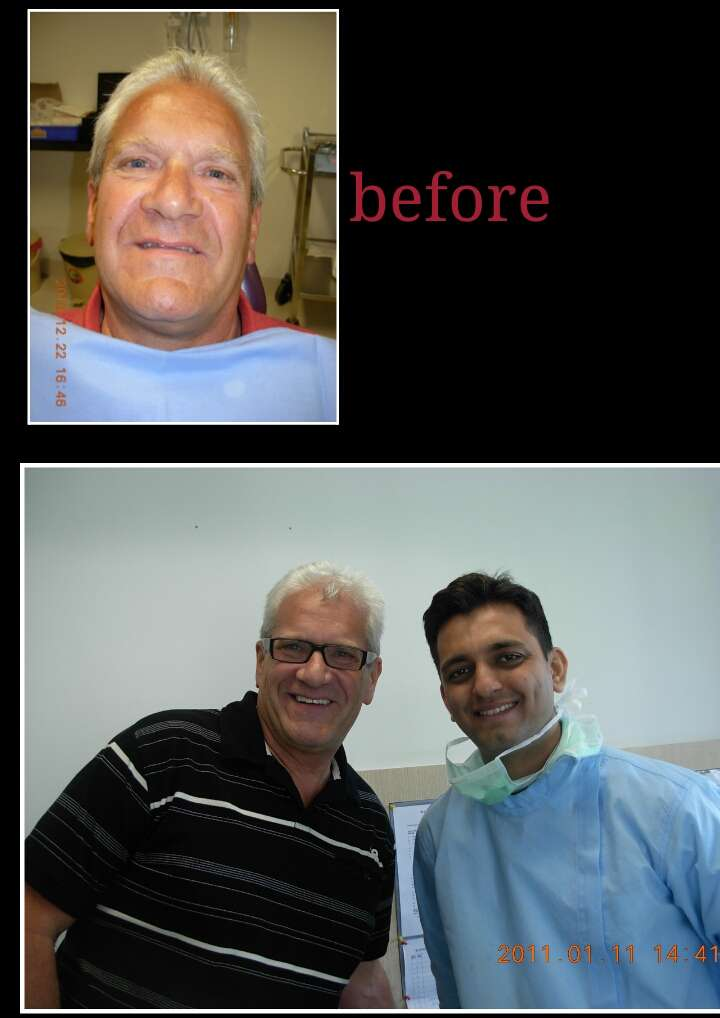 Smile Designing Before After