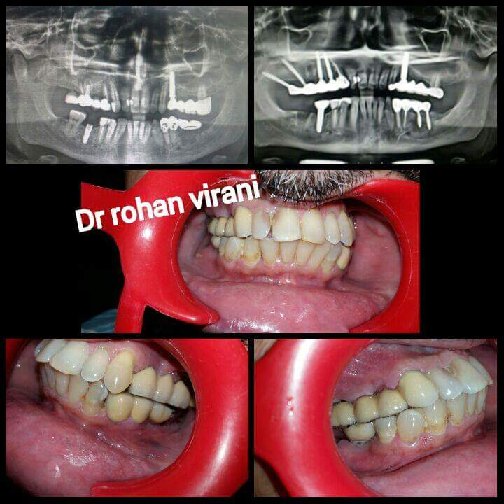 Fixed Teeth Dental Implants