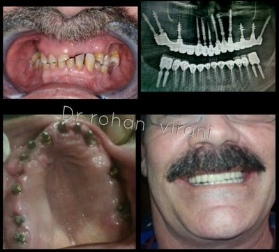 Full Mouth Rehabilitation done with Immediate Functional Loading