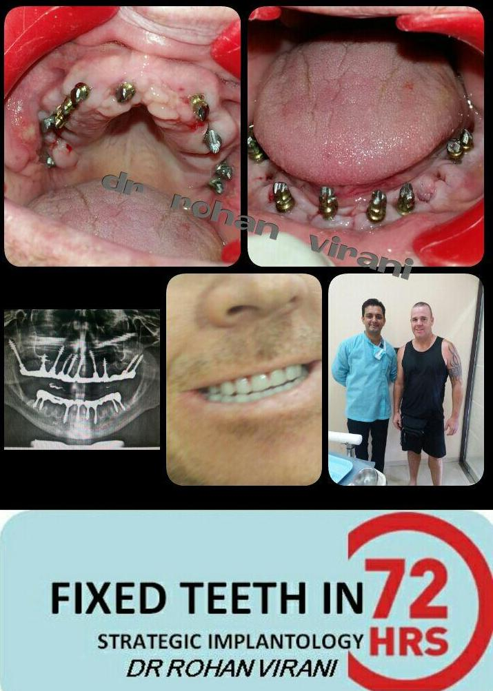 Patient from Newzealand done Basal Implants