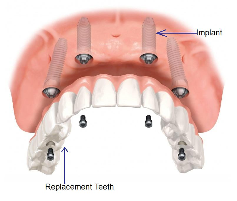 Upper Jaw Full Arch